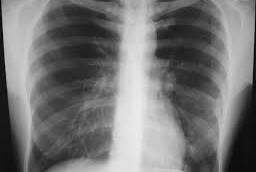 Атипичные пневмонии