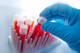 Чем лечить микоплазмоз у женщин: препараты