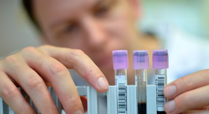Ученые нашли эффективное средство против ВИЧ