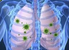 Осложнения после пневмонии