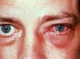 Чем лечить глазной кандидоз (молочницу) при его симптомах?