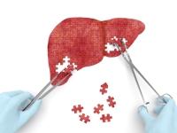 FDA предупредила об опасном побочном эффекте новых ЛС против гепатита С