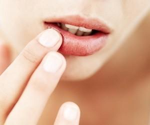 Снижение защитных сил организма провоцирует герпес на губах