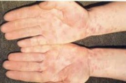 Как быстро (на какой день) проявляется сифилис: первые, внешние его проявления