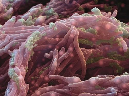 Новая схема лечения туберкулеза вдвое сократит продолжительность терапии