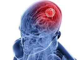 Вирусные инфекции головного мозга (Энцефалит, Энцефаломиелит, Вирусный менингит)