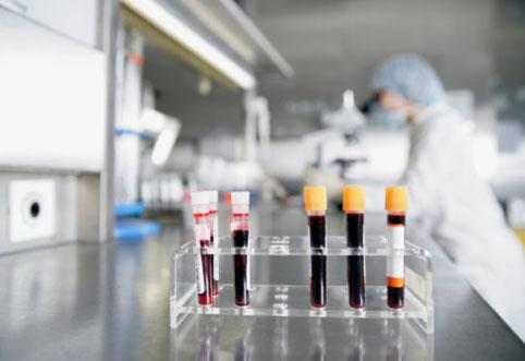 Исследование донорской крови на инфекции