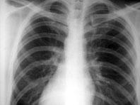 Пневмония посещает чаще тех, кто пропускает визиты к стоматологу