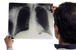 Информация о заболевании туберкулезом и существующие методы борьбы с ним