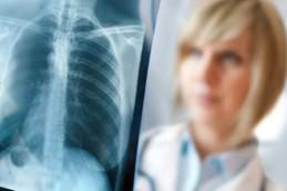 Почему заболеть туберкулёзом может каждый