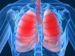 Если пневмония протекает тяжело