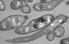 Учёные выявили рецепторы, влияющие на повреждение тканей при тяжёлых формах туберкулёза