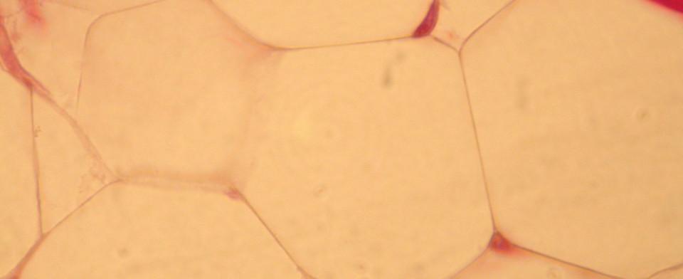 Адипоциты усиливают иммунитет кожных покровов