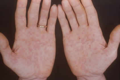 Сифилис у женщин, признаки, симптомы и лечение