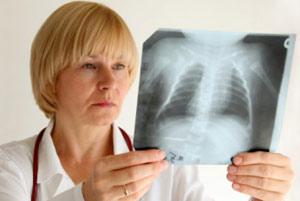 Что такое вирусная пневмония