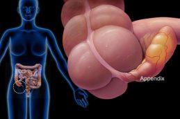 Британские врачи предложили лечить неосложненный острый аппендицит с помощью антибиотиков