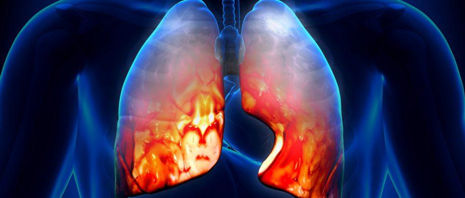 Атипичная пневмония: профилактика, симптомы, лечение