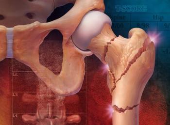 Риск остеопороза у больных с  ВИЧ-инфекцией увеличивается