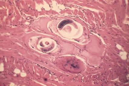 Патогенез трихинеллеза