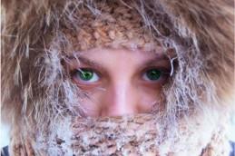Как лечить аллергию на холод с помощью мази?
