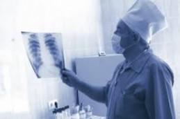 В Европе снизилась заболеваемость туберкулезом