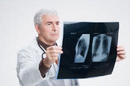 Симптомы пневмонии у взрослых и детей