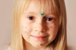 Распространенные детские инфекции: симптомы