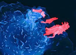 Болезни клеточного иммунитета