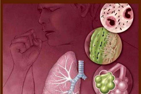 Роль кислорода в профилактике вирусной пневмонии