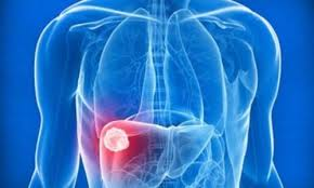 Гепатит С — достаточно коварное вирусное заболевание
