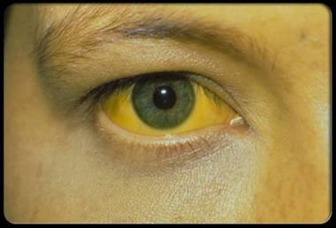 Этиотропная и патогенетическая терапия вирусных гепатитов