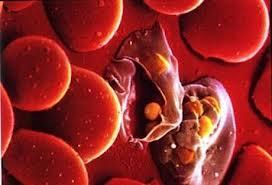 Малярия. Инфекционные болезни
