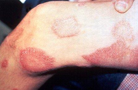 Диагностика и лечение лепры (проказа)