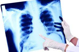 Что нужно знать о пневмонии