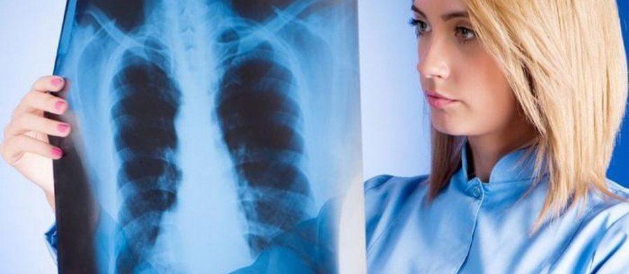 Заболеваемость воспалением легких растет. Пневмония коварна и порой нетипична