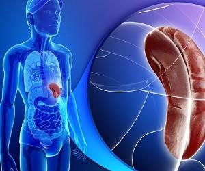 Спленомегалия – лечение болезни, причины и методы профилактики