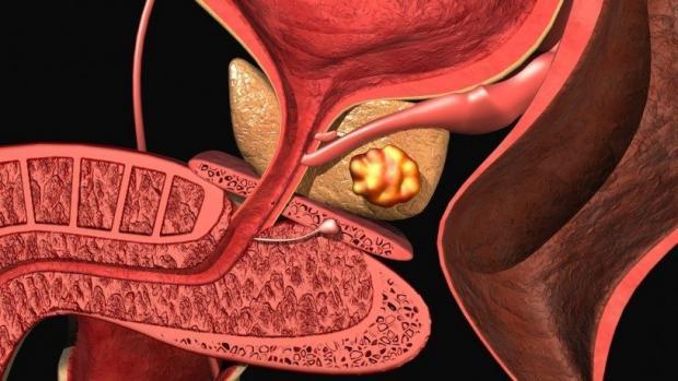 Прорыв в науке на предмет исследования жировых клеток рака предстательной железы