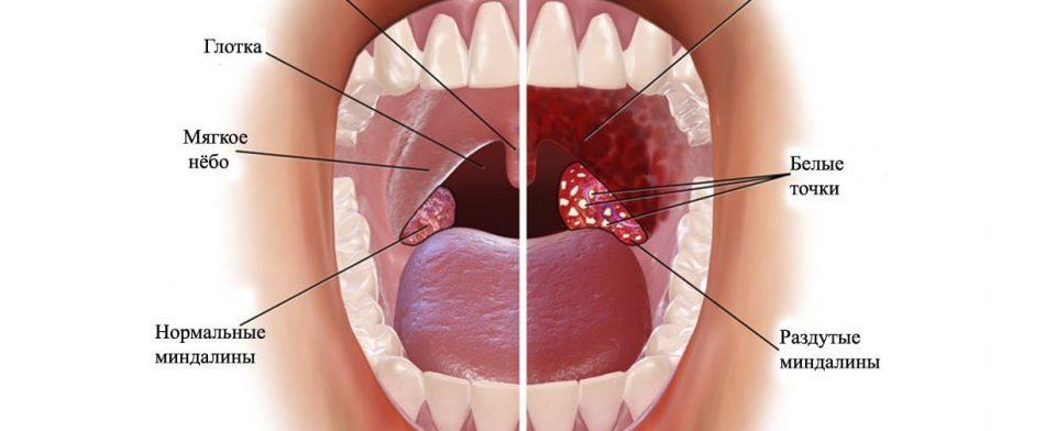 Боль в горле: лечение без антибиотиков