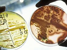 Биологи узнали, что заставляет бактерии впадать в «спячку»