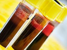 Определить риск туберкулеза можно по анализу крови