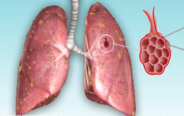 Создан новый препарат от туберкулеза