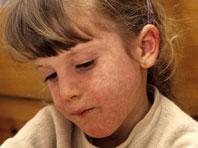 Роспотребнадзор сообщил об эпидемии кори в Европе
