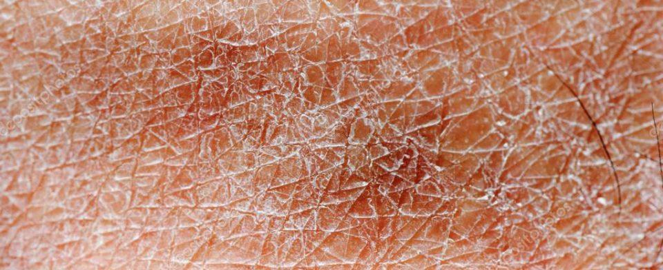 Больная кожа вырабатывает антибиотики