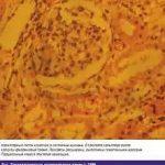 Гемолитико-уремический синдром как осложнение острой кишечной инфекции у детей
