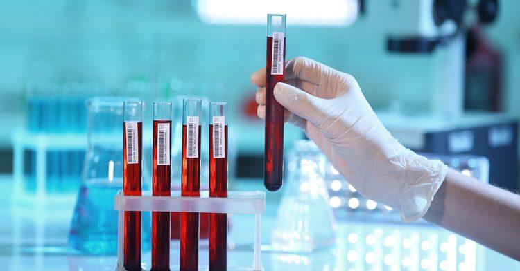 Интенсивность болей определят с помощью анализа крови