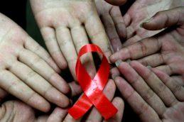 ВИЧ не вызывает СПИД напрямую