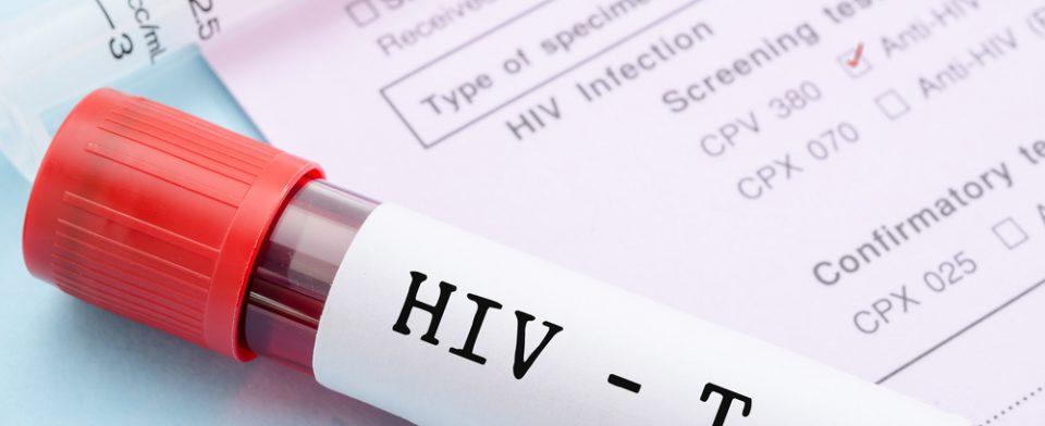 Повторная сдача анализов на обнаружение ВИЧ-инфекции — как часто нужно проверяться?