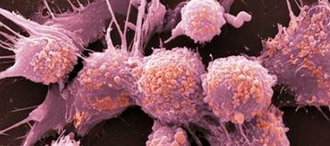 Метастатические образования оказались симбиозом двух видов клеток