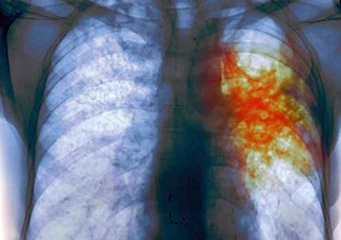 Ученые разработали гаджет, который будет диагностировать туберкулез с помощью мобильного телефона