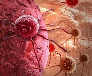 Исследователи открыли антитело, заставляющее иммунитет убивать рак